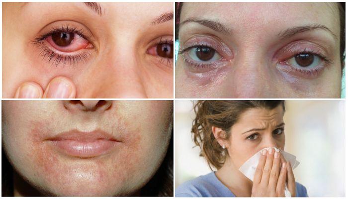 Аллергия на брекеты