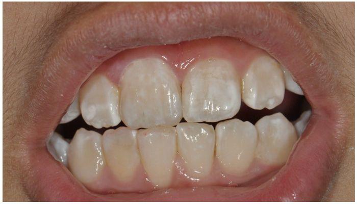 Остаются ли следы от брекетов на зубах после снятия