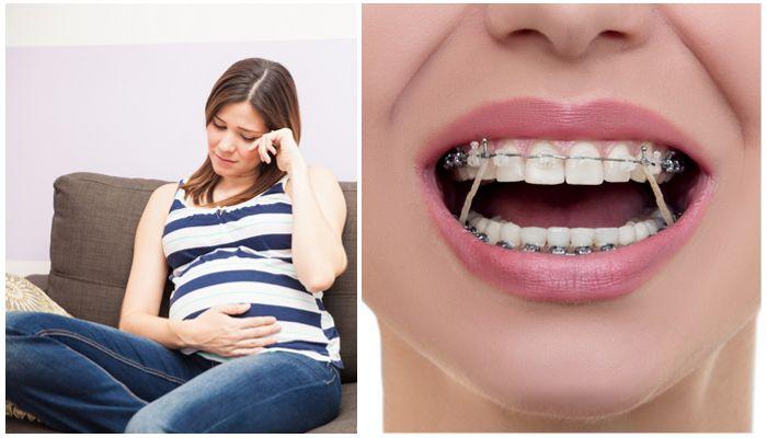 Брекеты и беременность