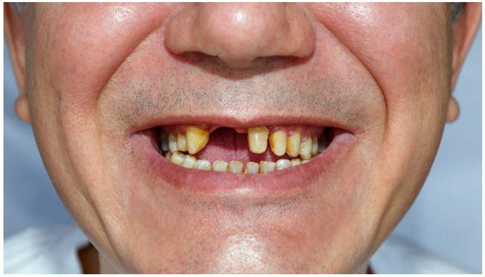 Без нескольких зубов