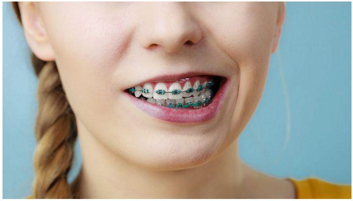 Почему и как долго болят зубы после установки брекетов