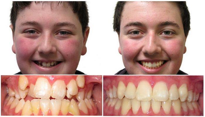 Фото до и после лечения брекетами