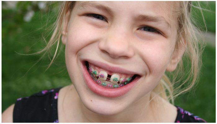 Как делают брекеты на зубы детям – видео