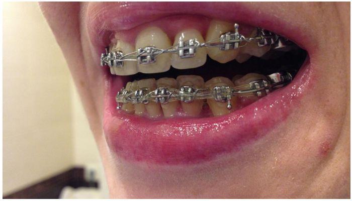 Фото с зубами с брекет-системой