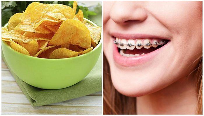 Почему нельзя есть чипсы с брекетами