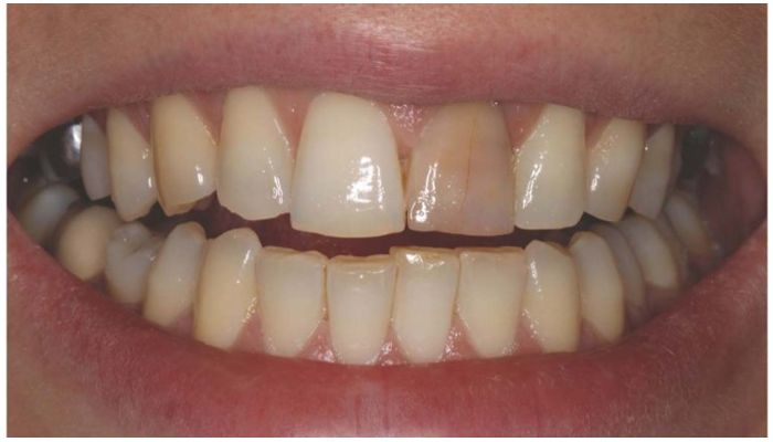 Зубы с изъянами