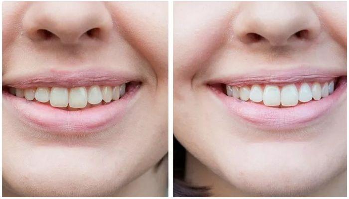 До и после зубной пасты Colgate Max