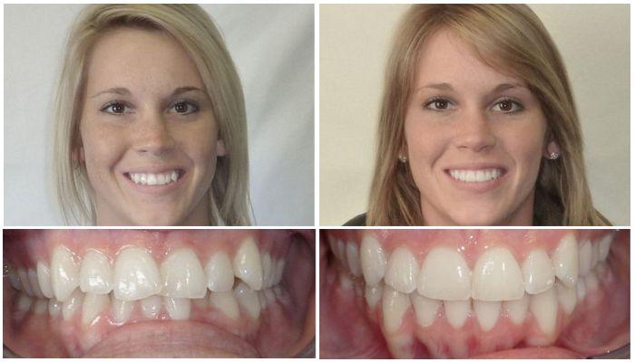 Фото пациентов до и после лечения