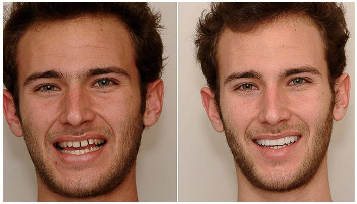 Фото лица до и после брекетов