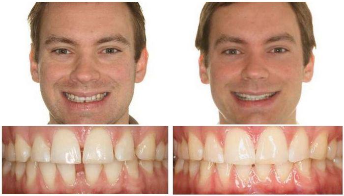 Фото до и после лечения мужчины