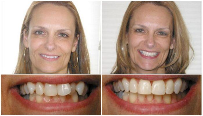 Фото до и после лечения женщины