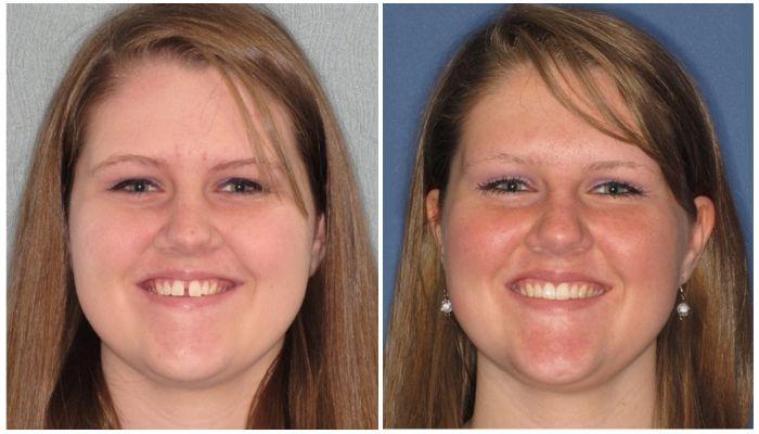 Фото до и после установки брекетов