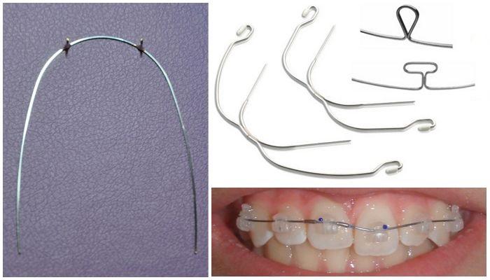 Ортодонтические дуги
