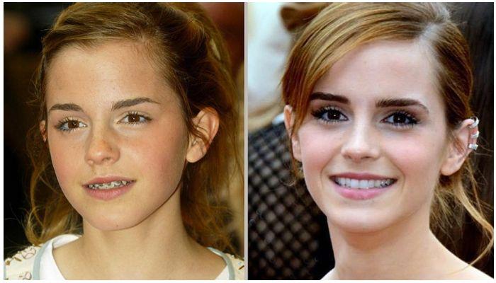 Звезды с брекетами: фото до и после