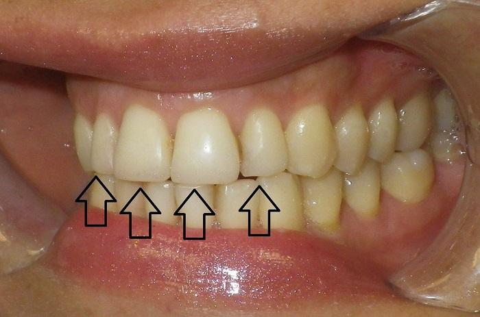 Фото виниров на 4 зуба