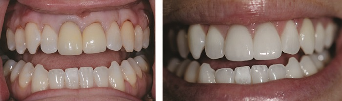 Фото виниров на 2 зуба