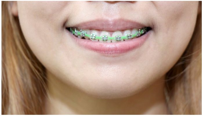 Фото губ при ношении брекетов