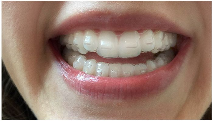 Капа на зубах человека