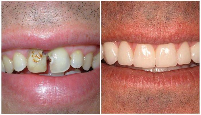 Фото зуба с кариесом и фото зуба с виниром
