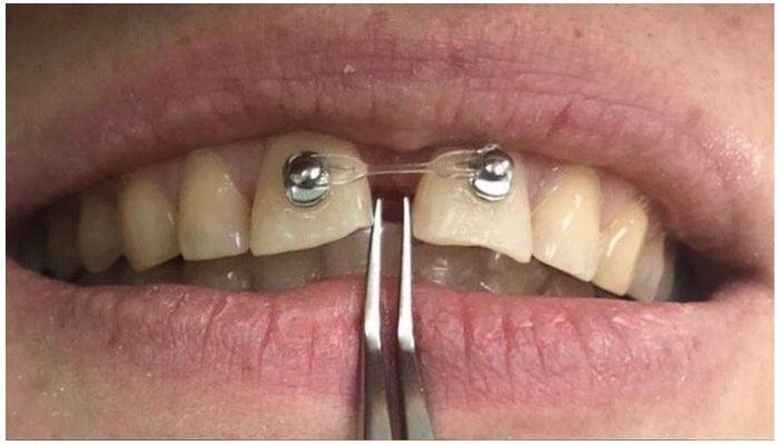 Фото кнопок на зубы с резинками
