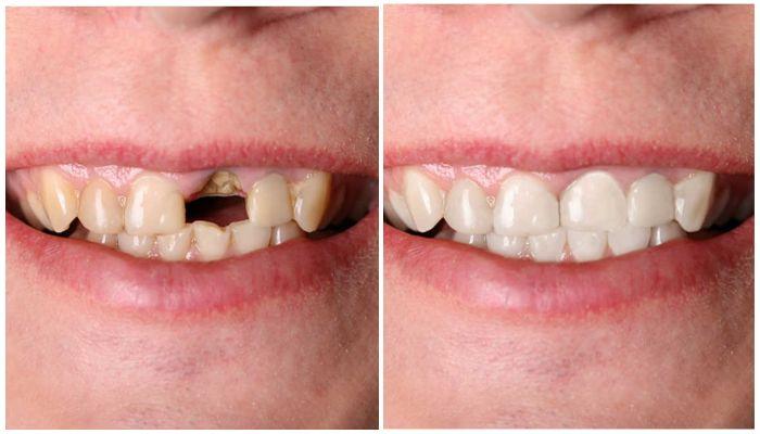 Виниры или коронки – что лучше для передних зубов
