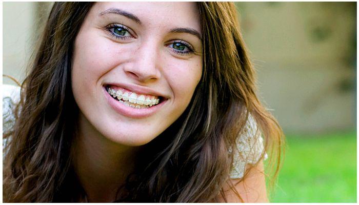 Девушка с пластиковыми брекетами