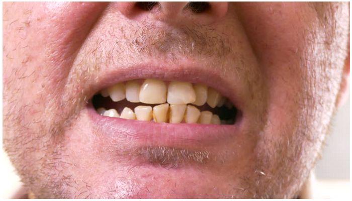 Кривые и желтые зубы