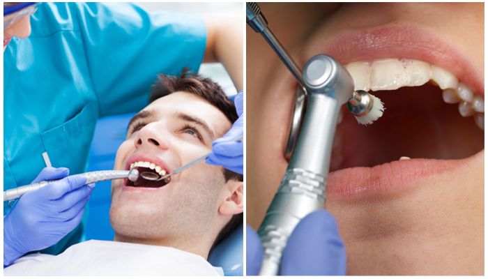 Фото лечения зубов, профессиональной чистки