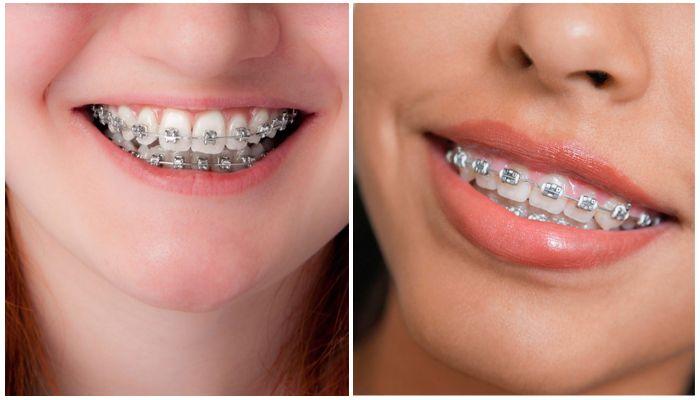 Как двигаются зубы в брекетах – видео