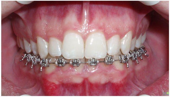 Фото металлических брекетов на нижних зубах