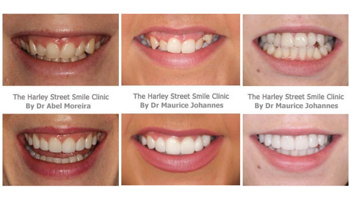 Фото зубов до и после установки виниров