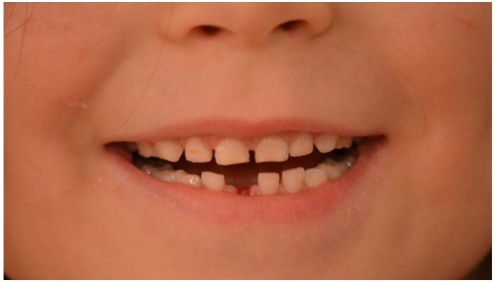 Фото молочных зубов
