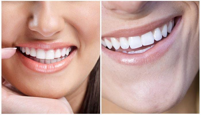 Отбеливание зубов или виниры – что выбрать