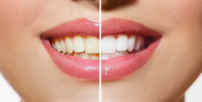 До и после отбеливающих зубных щеток