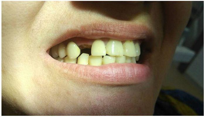 Отсутствующие зубы