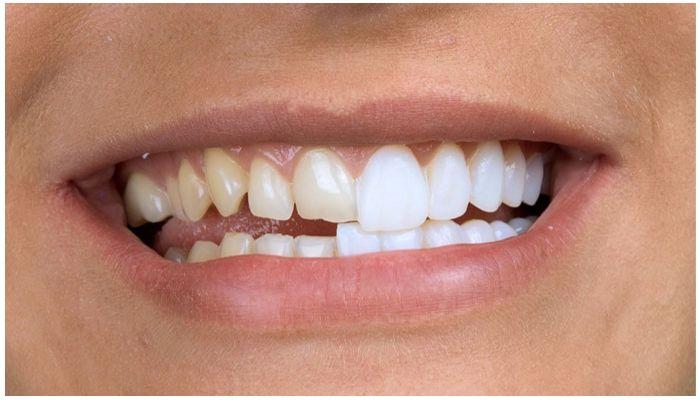 Фото передних зубов и виниров