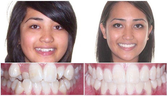 Девушка до и после лечения