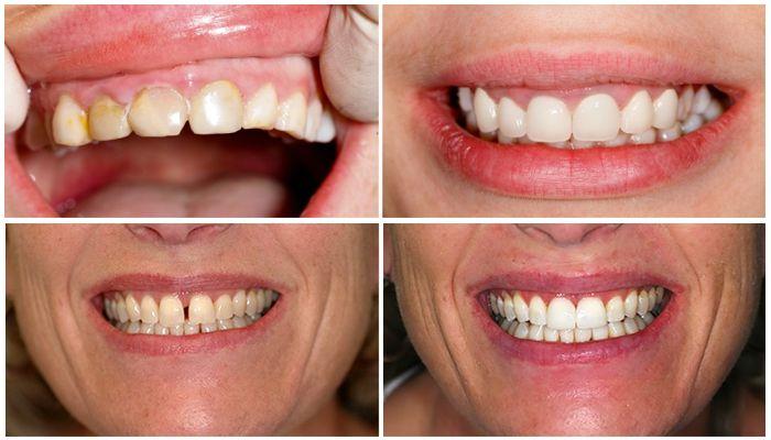 Фото рта до и после установки ультраниров