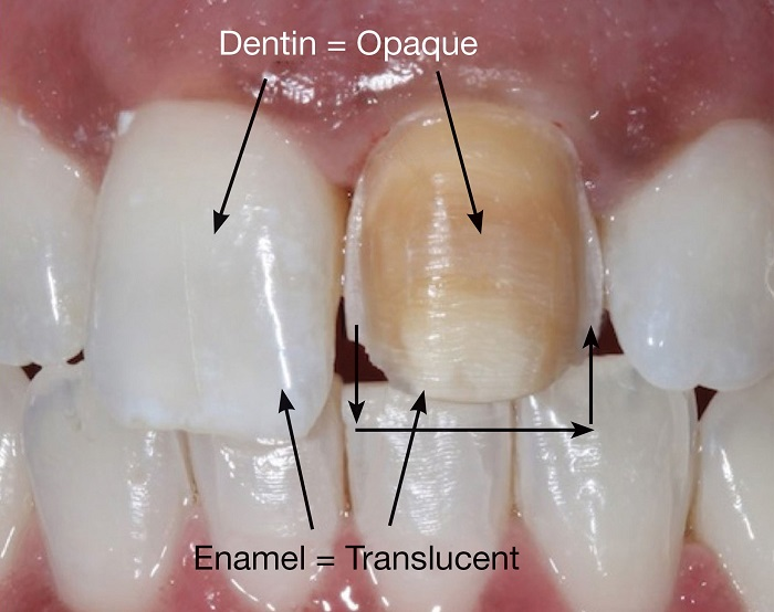 Зубы после виниров