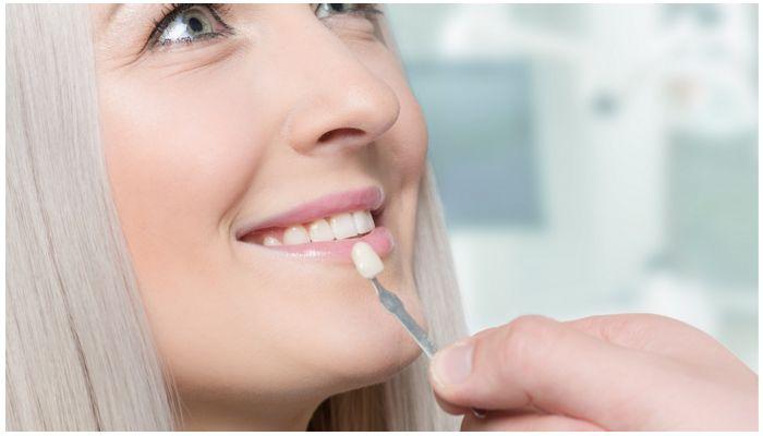 Можно ли ставить винир на один зуб