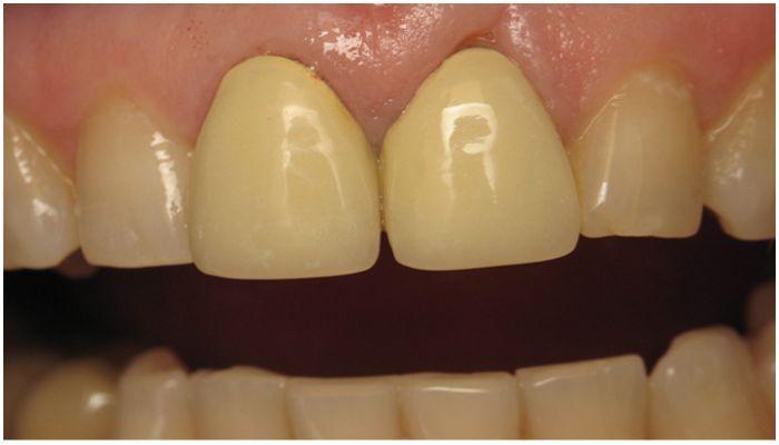 Сколько служат виниры на зубах