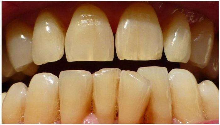 Фото пожелтевших, потрескавшихся зубов