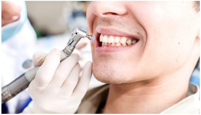Профессиональная чистка зубов
