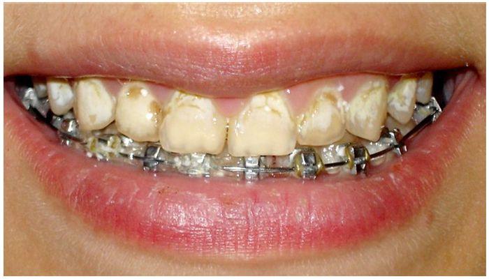 Белые пятна на зубах от брекетов