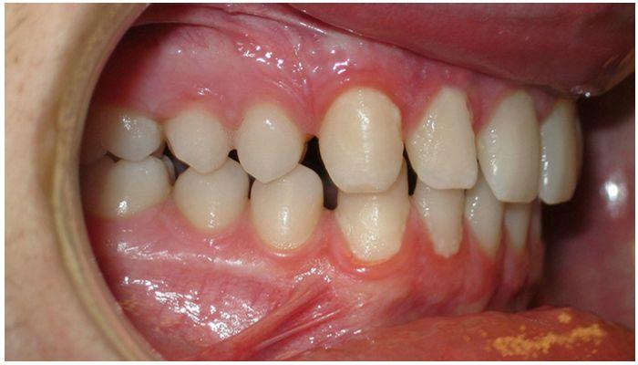Разъехались зубы после брекетов – что делать