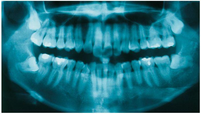 Фото рентгеновского снимка