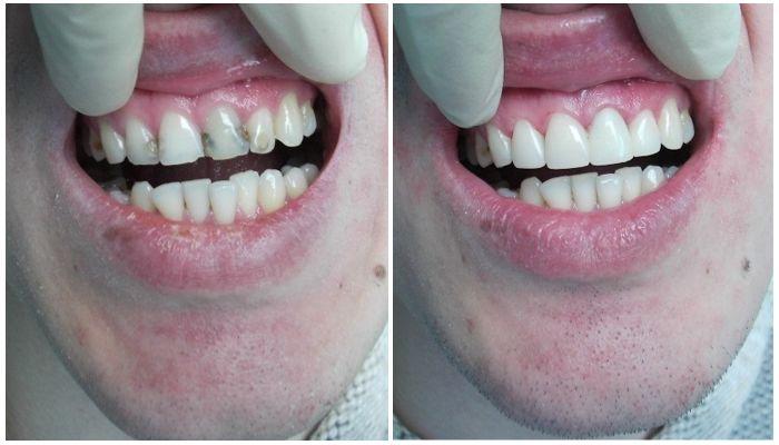 Фото реставрации зубов