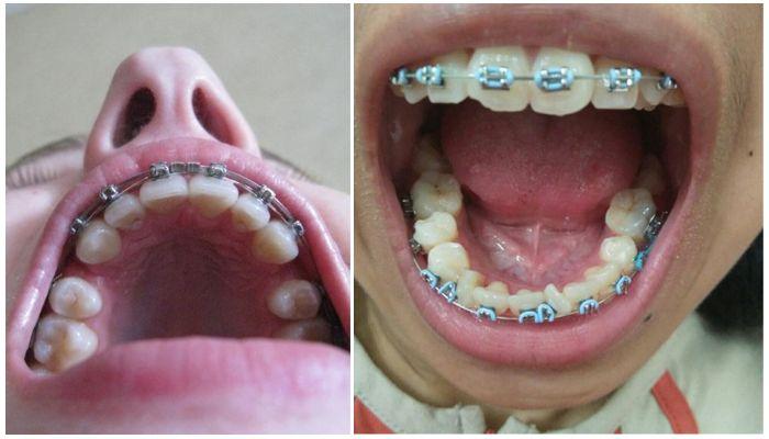 Фото зубов в брекетах с четверками и без них