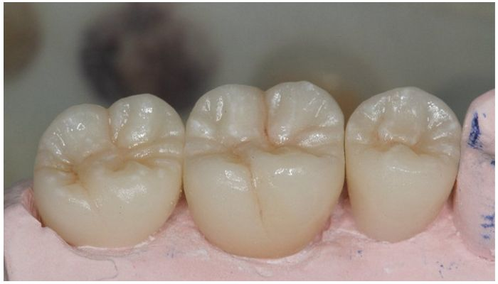 Окклюзионные поверхности зубов