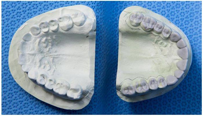 Гипсовые оттиски с челюстей